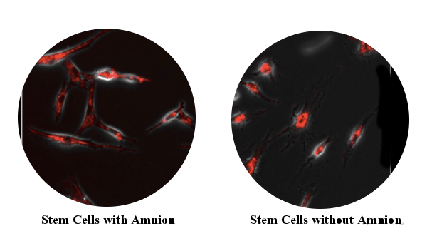 Image of bone marrow stem cells with and without amnion